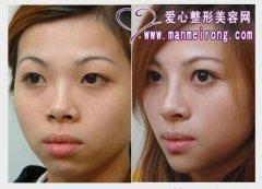 隆鼻整形对比图